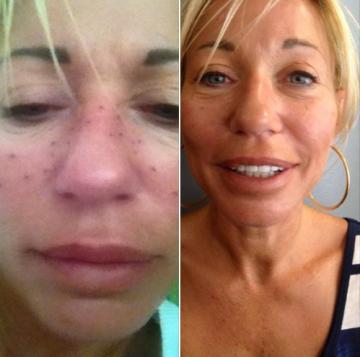 Tatouage réparateur contour de lèvres