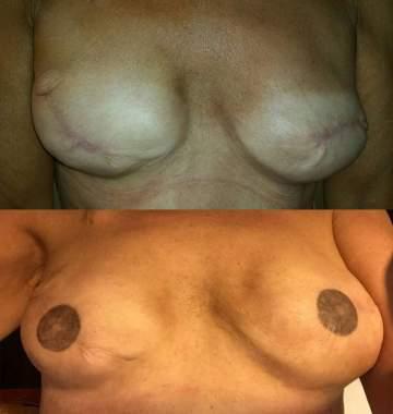 Tatouage réparateur aréole de sein